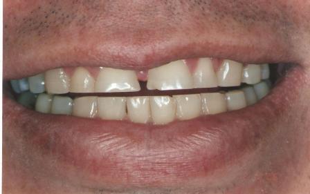 Sorriso Inicial - Dentes Desgastados