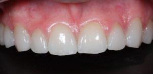 Close Dentes Faceta Cerâmica