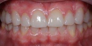 Oclusão Dentes Faceta Cerâmica