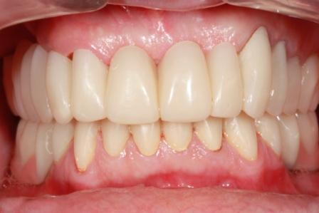 Visão Oclusal e Guias dos Dentes após cimentação