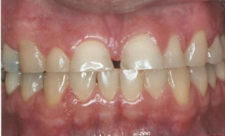 Oclusão Dentes Desgastados