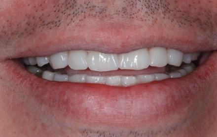 Naturalidade dos Dentes com Facetas em Cerâmica
